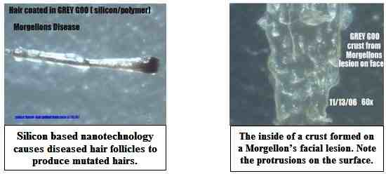chemtrails-morgellons-toxicnow (2)